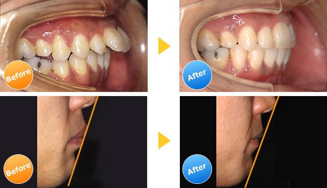 出っ歯の治療例
