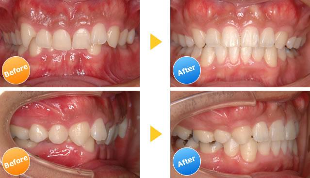 過蓋咬合の治療例