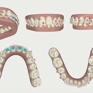 歯を抜かないインビザライン矯正