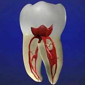 矯正治療中の虫歯治療