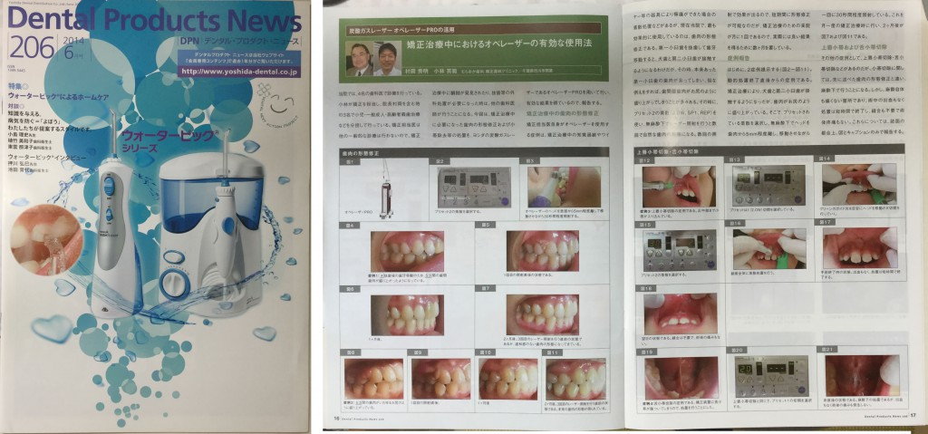 Dental Product News