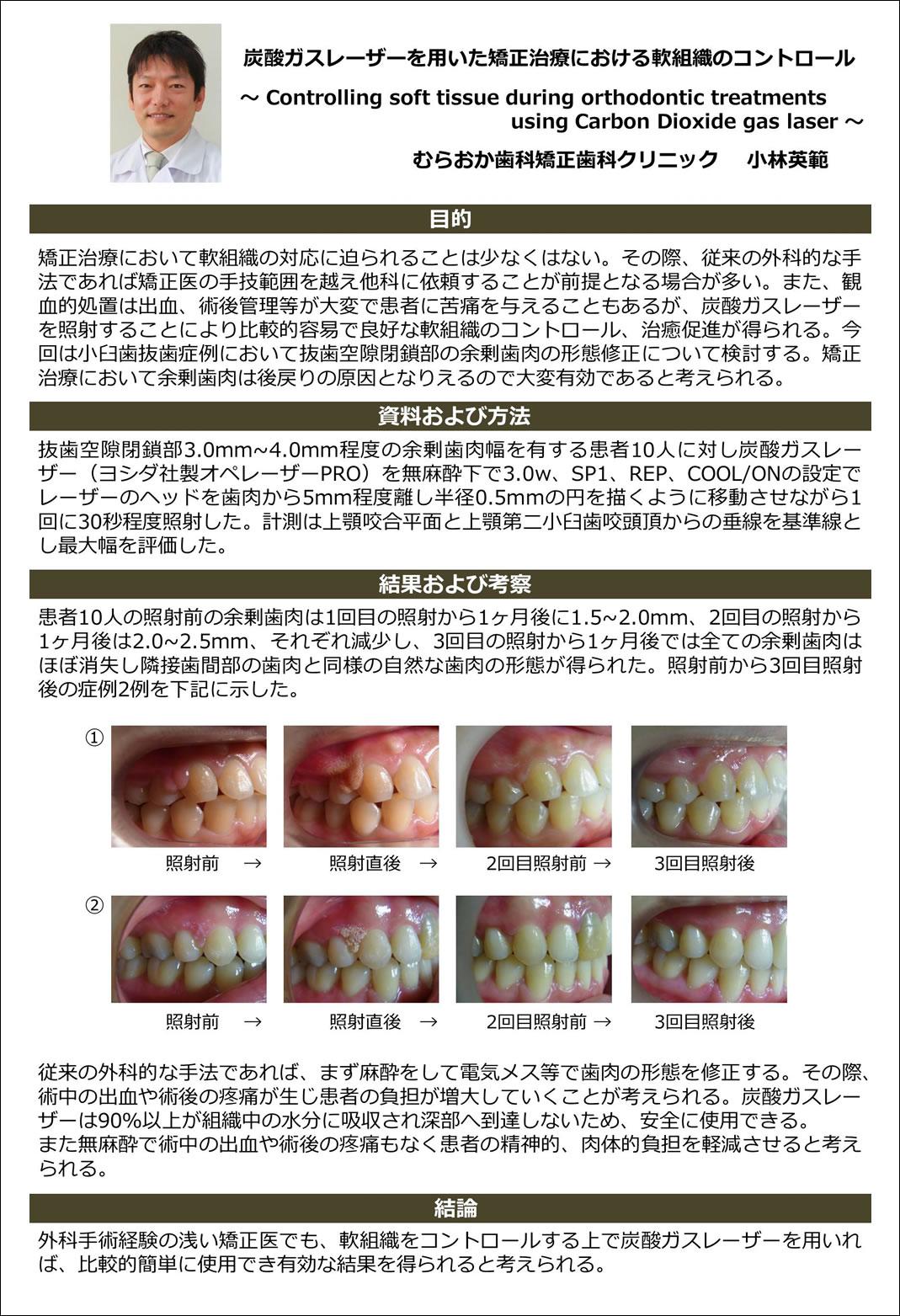 日本矯正歯科学会大会 ポスター